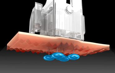 水光注射イメージ